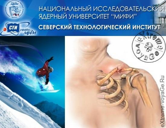 Русский костный цемент регенерирует кости человека